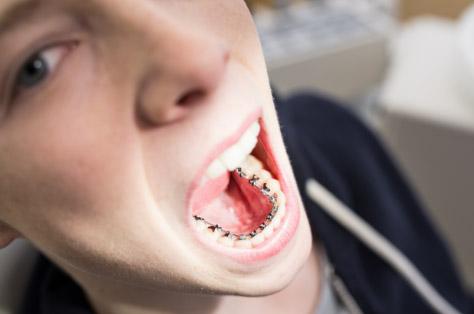 Jugendlicher mit Zahnspange